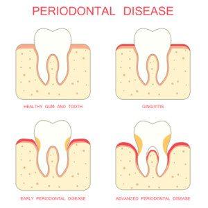 periodontal-300x300